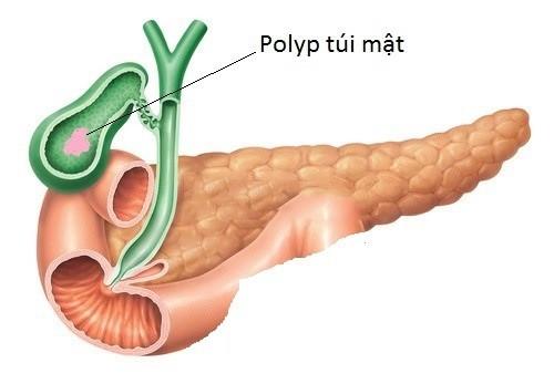 Polyp túi mật cần được phát hiện sớm và điều trị hiệu quả