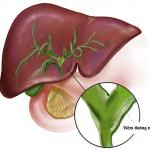 Khám và chữa trị viêm đường mật