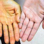 Khám và điều trị áp xe gan