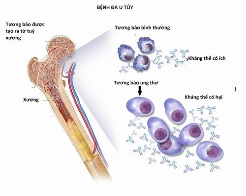 Đa u tủy xương xuất phát từ tương bào là thành phần của bạch cầu trong máu.