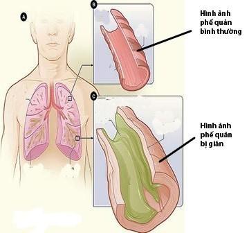 Giãn phế quản là tình trạng các phế quản của phổi bị giãn khó hồi phục.