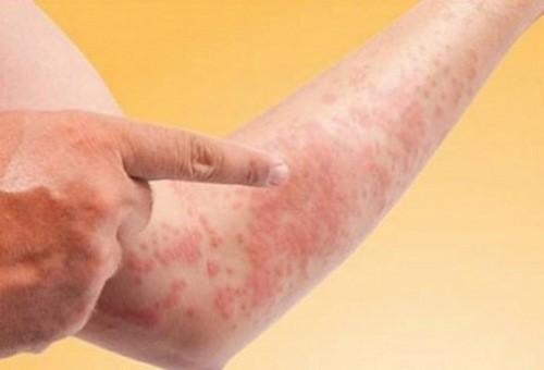 Triệu chứng cảnh báo bệnh nóng gan