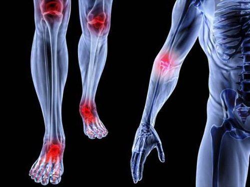 Bệnh Still ở người lớn là tình trạng viêm có tính chất hệ thống nên có thể gây tổn thương ở nhiều bộ phận, cơ quan trong cơ thể.