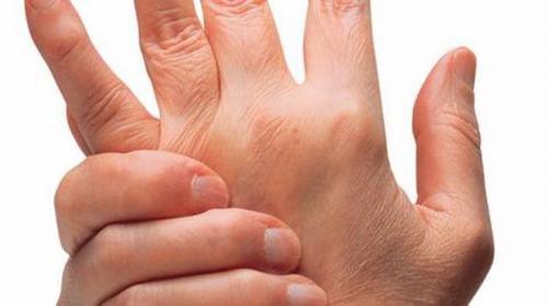 lớn người bệnh Still gặp phải triệu chứng đau khớp