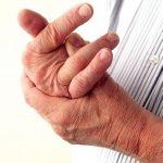 Khám và điều trị bệnh viêm khớp vảy nến