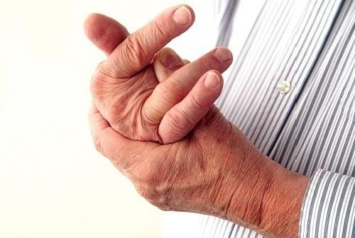 Viêm khớp vảy nến là bệnh tự miễn gây viêm khớp