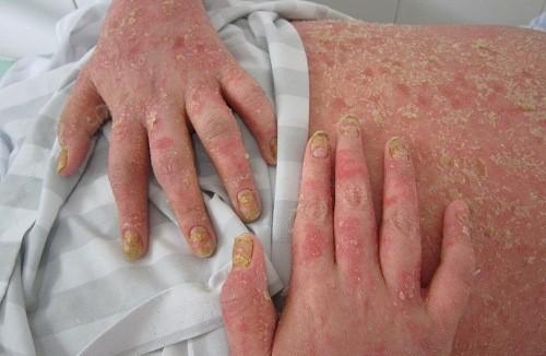 Viêm khớp vảy nếu có các dấu hiệu và triệu chứng giống viêm khớp dạ thấp.