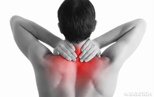 Hội chứng cổ vai cánh tay còn được gọi với tên hội chứng vai cánh tay hay bệnh lý rễ tủy cổ