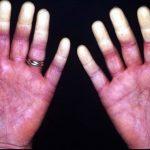 Khám và điều trị hội chứng Raynaud