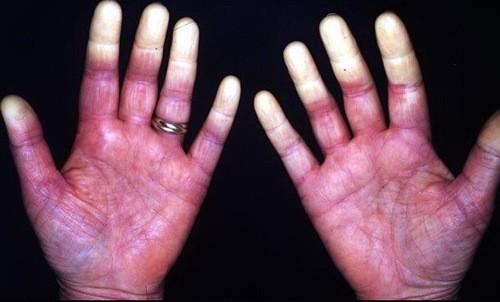Hội chứng Raynaud là triệu chứng của nhiều bệnh lý trong cơ thể nhất là tình trạng rối loạn vận mạch, co thắt mạch máu.
