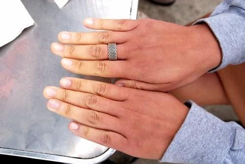 Khi thời tiết lạnh, người bệnh có dấu hiệu trắng bệch các đầu ngón tay