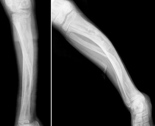 Loạn sản xơ xương là tình trạng mô xương bị thay thế bởi mô xơ.
