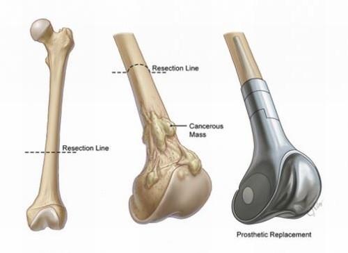 Ở nhiều người bệnh, những chấn thương trong quá khứ gây đau xương, nhiễm trùng xương mạn tính cũng có khả năng bị Sarcoma tạo xương cao hơn.