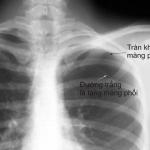 Khám và điều trị tràn khí màng phổi