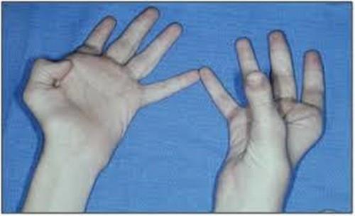 Triệu chứng liệt dây thần kinh trụ