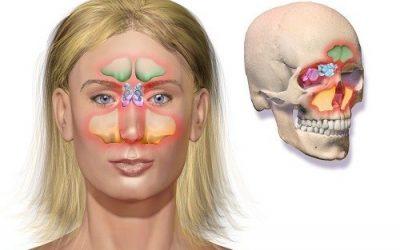 Những kiến thức không thể bỏ qua khi phẫu thuật mở rộng lỗ thông xoang hàm
