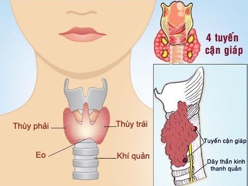 U nang tuyến giáp cần được phát hiện sớm và điều trị hiệu quả