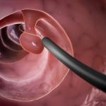 Nguyên nhân gây polyp cổ tử cung là gì?
