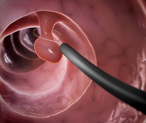 Nguyên nhân gây polyp cổ tử cung đến nay vẫn chưa được xác định chính xác, cụ thể