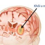Nguyên nhân ung thư não