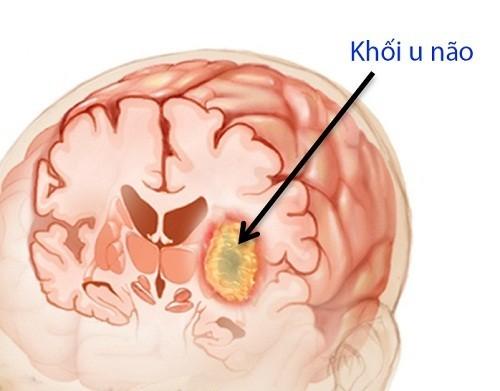 Ung thư não là bệnh lý nguy hiểm thường gặp ở người trên 65 tuổi