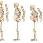 VTV2 kết hợp BV Thu Cúc tư vấn những điều cần biết về bệnh loãng xương