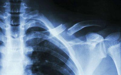 Phẫu thuật gãy xương đòn