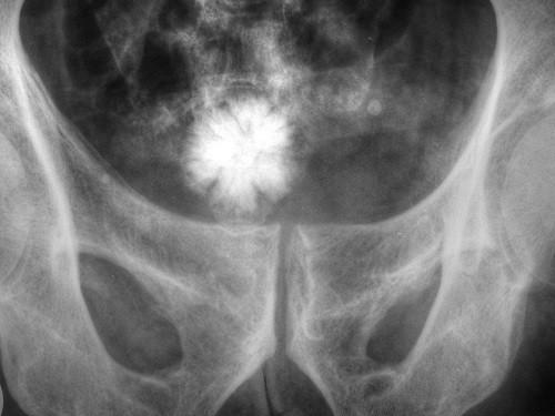 phẫu thuật lấy sỏi bàng quang