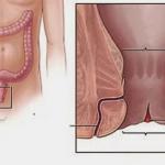 Phẫu thuật nứt kẽ hậu môn
