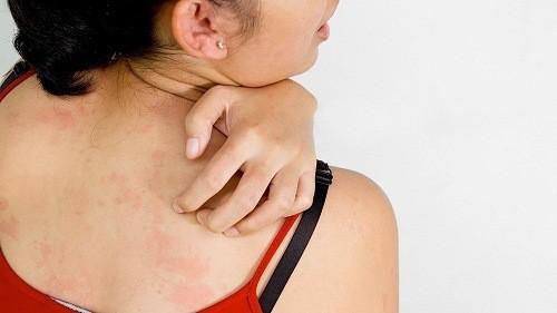 Mẩn ngứa, mụn nhọt là triệu chứng rối loạn chức năng gan