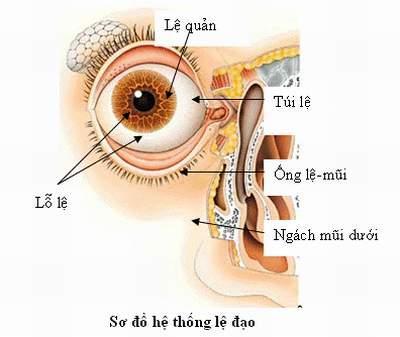 Chứng tắc lệ đạo (tắc tuyến lệ) xảy ra khá phổ biến, gây ratình trạng chảy nước mắt thường xuyên rất bất tiện.