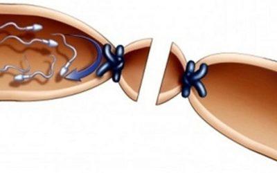 Triệu chứng tắc ống dẫn tinh