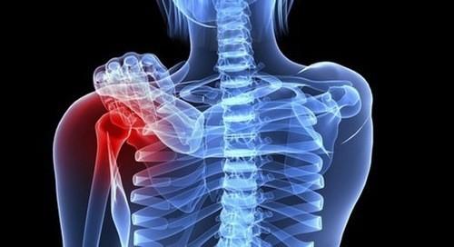 Khi bị ung thư xương, người bệnh sẽ thấy triệu chứng đau nhức xương, hạn chế vận động