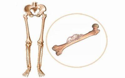 Triệu chứng của ung thư xương