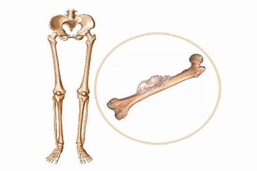 Các triệu chứng của ung thư xương dễ bị nhầm lẫn nên người bệnh cần hết sức lưu ý