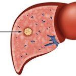 Ung thư gan có di truyền không?