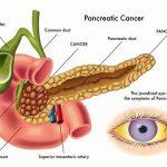 Ung thư tuyến tụy và những điều cần biết