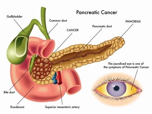 Ung thư tuyến tụy là một trong những loại ung thư đường tiêu hóa nguy hiểm.