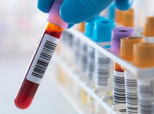 Xét nghiệm máu biết được những loại ung thư gì?