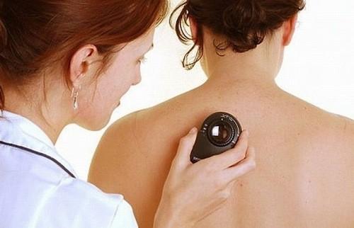 Sinh thiết là một trong những biện pháp giúp chẩn đoán sớm ung thư da