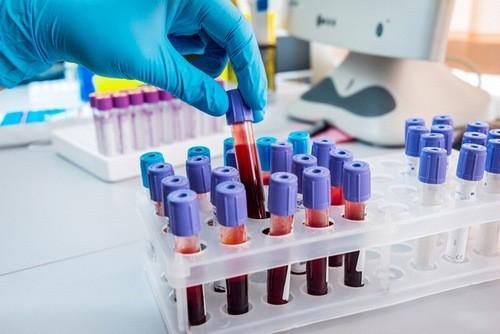 Xét nghiệm máu là một trong những phương pháp giúp phát hiện sớm ung thư máu