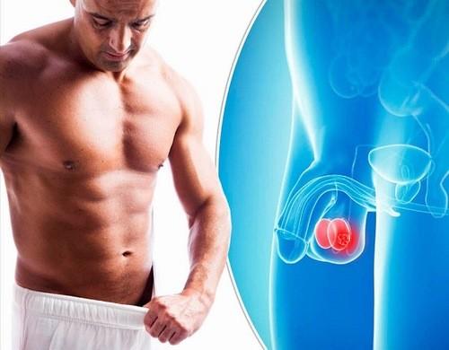 Khi bị ung thư tinh hoàn, người bệnh sẽ cảm thấy đau, tức ở tinh hoàn, nặng ở bìu
