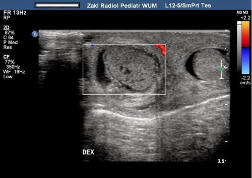 Siêu âm là một trong những phương pháp giúp phát hiện sớm ung thư tinh hoàn