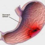 Xung huyết dạ dày là gì?