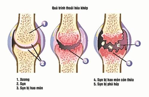 Thoái hóa khớp cần được phát hiện sớm và điều trị kịp thời hiệu quả