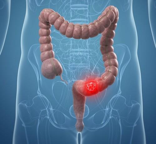 Dấu hiệu ung thư đại tràng giai đoạn đầu