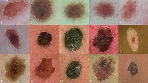 Điều trị ung thư nốt ruồi như thế nào