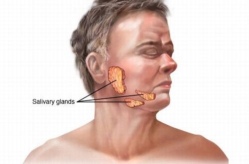 Ung thư tuyến nước bọt là bệnh thường gặp trong các bệnh ung thư vùng đầu cổ