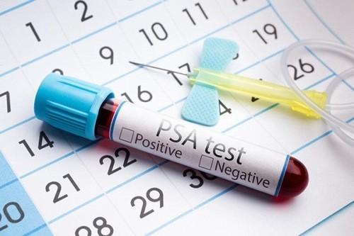 Định lượng PSA là một chất chỉ điểm ung thư có trong máu người bệnh ung thư tuyến tiền liệt