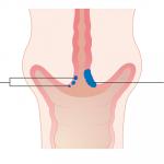 Hình ảnh ung thư cổ tử cung giai đoạn đầu